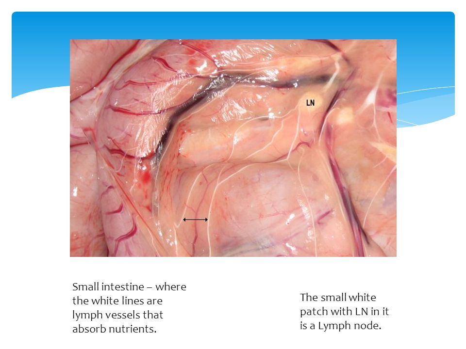 Small intestine – where the white lines are lymph vessels that absorb nutrients.