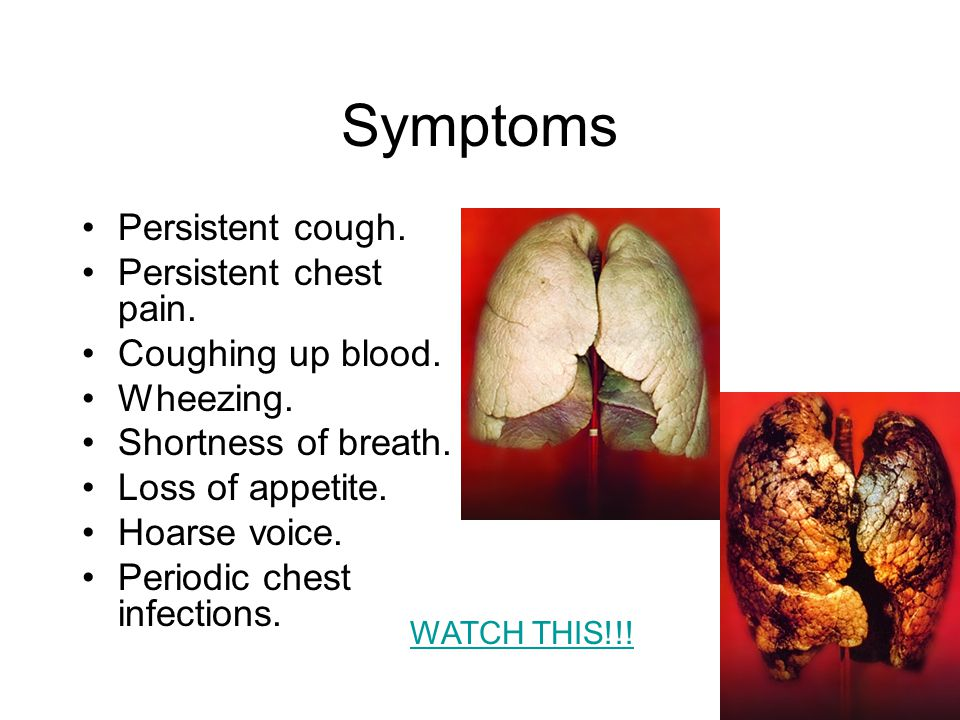 Symptoms Persistent cough. Persistent chest pain.