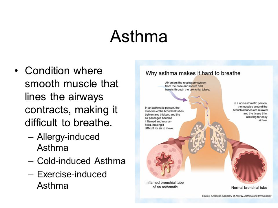 Asthma Condition where smooth muscle that lines the airways contracts, making it difficult to breathe.