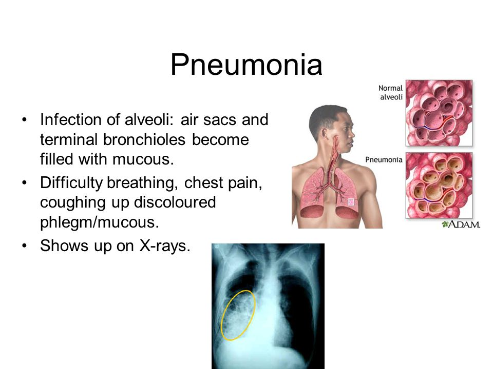 Pneumonia Infection of alveoli: air sacs and terminal bronchioles become filled with mucous.