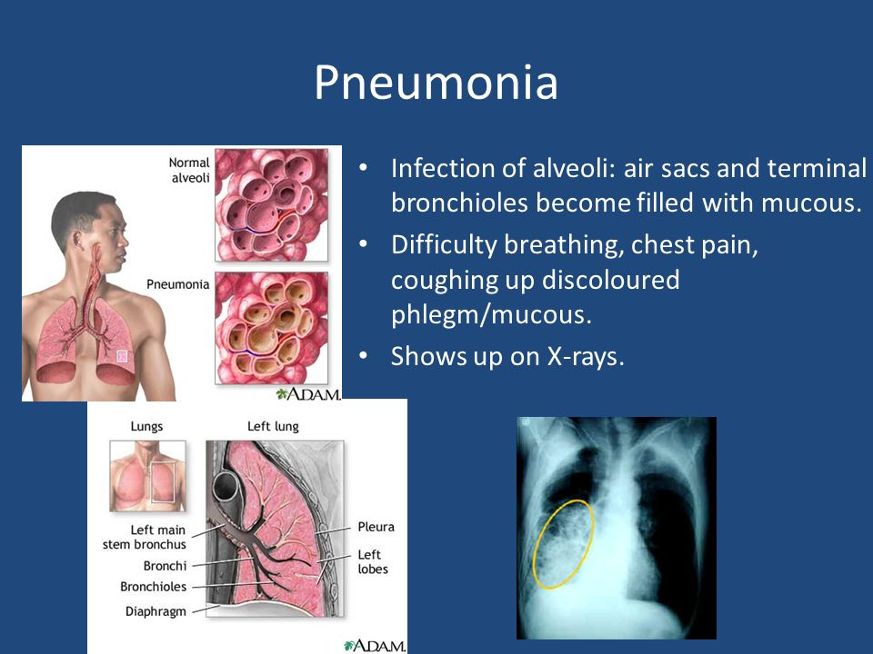 Respiratory Disorders  Asthma Condition where smooth muscle
