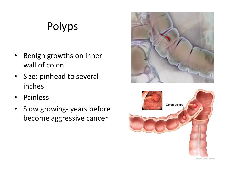 What Is A Colonoscopy Study Of Lining Of Colon And Rectum By A Gastoenterologist Ppt Download