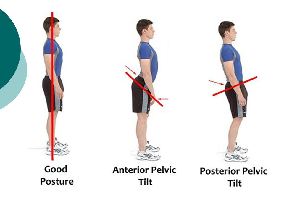 Pelvic Girdle Lecture ppt video online download