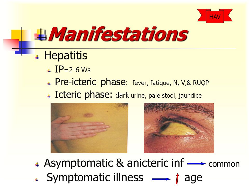 Manifestations Hepatitis IP =2-6 Ws Pre-icteric phase : fever, fatique, N, V,& RUQP Icteric phase: dark urine, pale stool, jaundice Asymptomatic & anicteric inf common Symptomatic illness age HAV