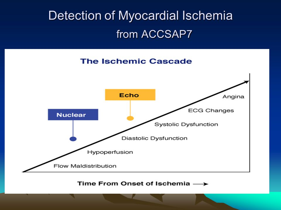 Detection of Myocardial Ischemia from ACCSAP7