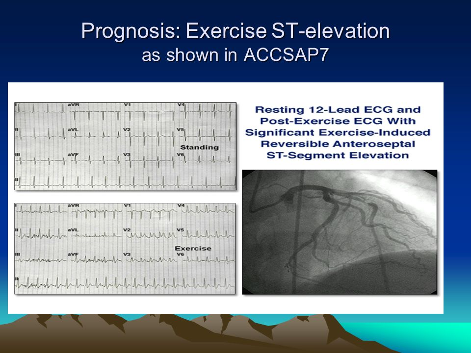 Prognosis: Exercise ST-elevation as shown in ACCSAP7