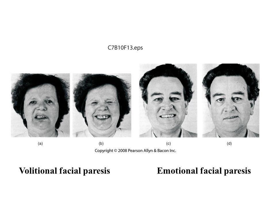 Volitional facial paresis