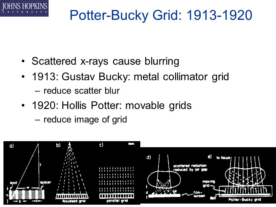 Potter-Bucky Grid: Scattered x-rays cause blurring 1913: Gustav Bucky: metal collimator grid –reduce scatter blur 1920: Hollis Potter: movable grids –reduce image of grid