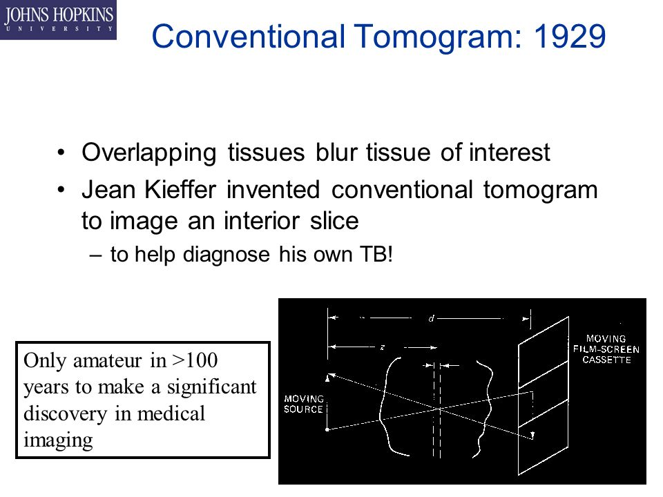 Conventional Tomogram: 1929 Overlapping tissues blur tissue of interest Jean Kieffer invented conventional tomogram to image an interior slice –to help diagnose his own TB.