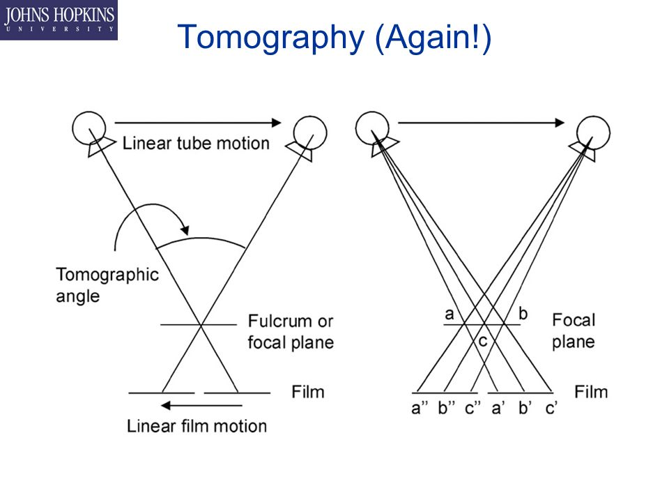 Tomography (Again!)