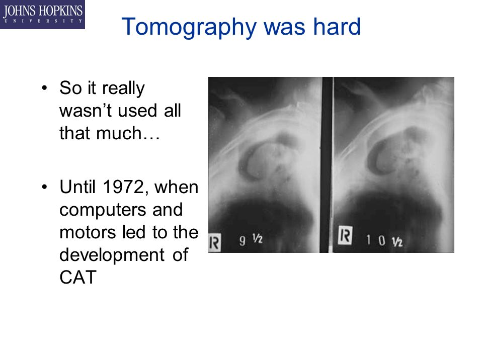 Tomography was hard So it really wasn't used all that much… Until 1972, when computers and motors led to the development of CAT