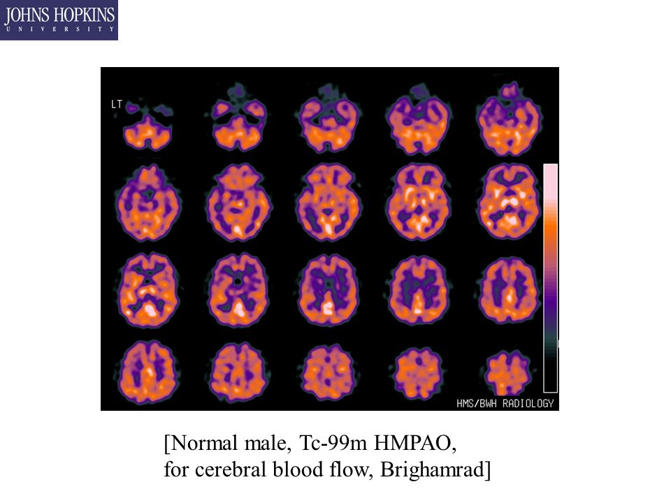 [Normal male, Tc-99m HMPAO, for cerebral blood flow, Brighamrad]