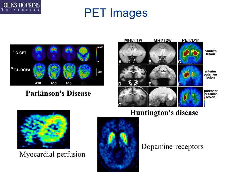 PET Images Parkinson s Disease Huntington s disease Myocardial perfusion Dopamine receptors