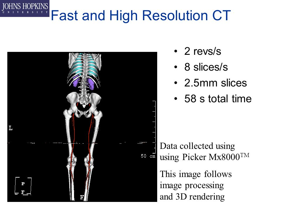 Fast and High Resolution CT 2 revs/s 8 slices/s 2.5mm slices 58 s total time Data collected using using Picker Mx8000 TM This image follows image processing and 3D rendering