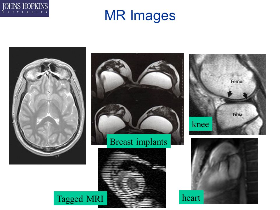 MR Images Tagged MRI Breast implants knee heart