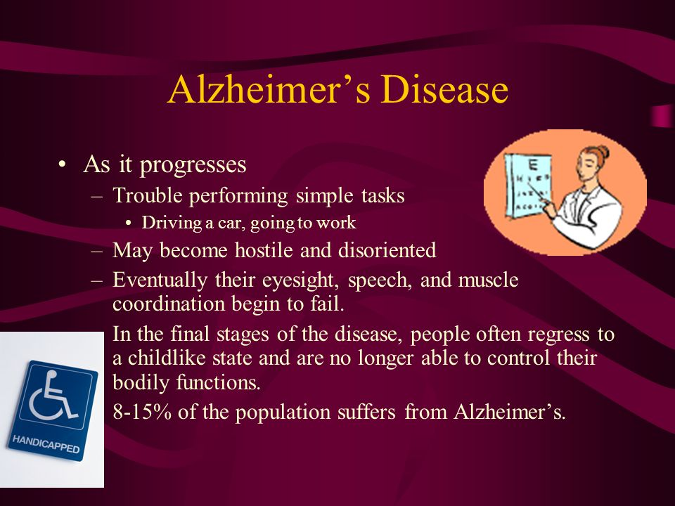Alzheimer's Disease For some people aging is accompanied by marked mental decline and dementia.