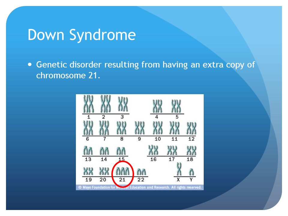Down Syndrome Genetic disorder resulting from having an extra copy of chromosome 21.