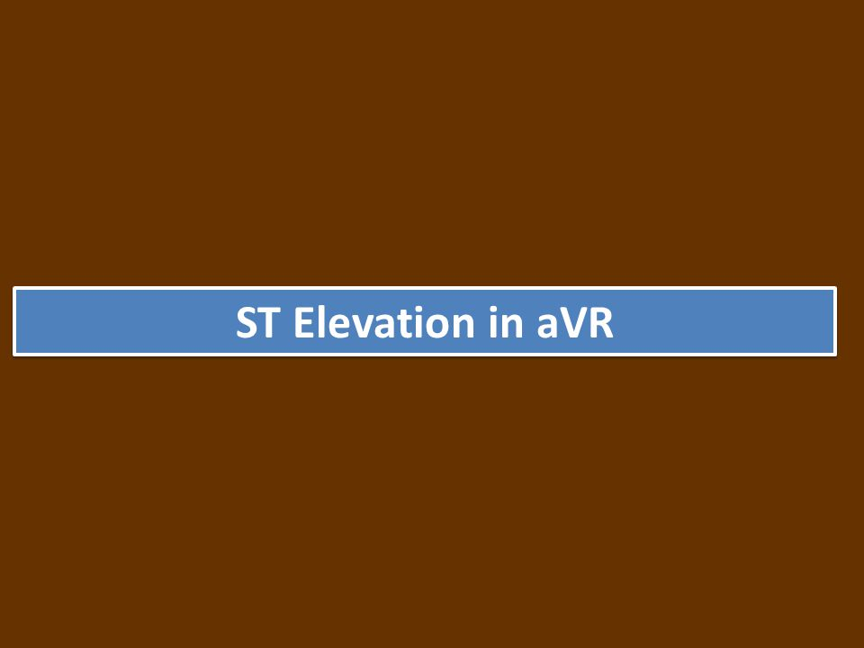 ST Elevation in aVR