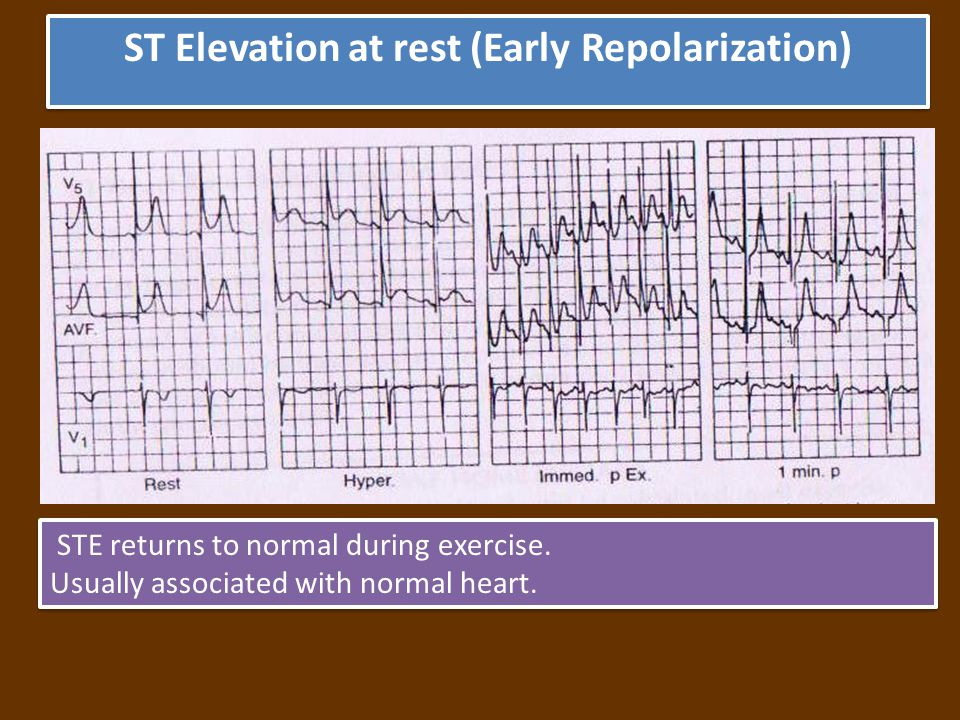 ST Elevation at rest (Early Repolarization) STE returns to normal during exercise.