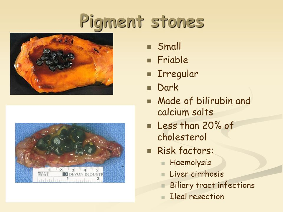 Pigment stones Small Friable Irregular Dark Made of bilirubin and calcium salts Less than 20% of cholesterol Risk factors: Haemolysis Liver cirrhosis Biliary tract infections Ileal resection
