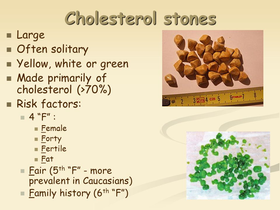 Cholesterol stones Large Often solitary Yellow, white or green Made primarily of cholesterol (>70%) Risk factors: 4 F : Female Forty Fertile Fat Fair (5 th F - more prevalent in Caucasians) Family history (6 th F )