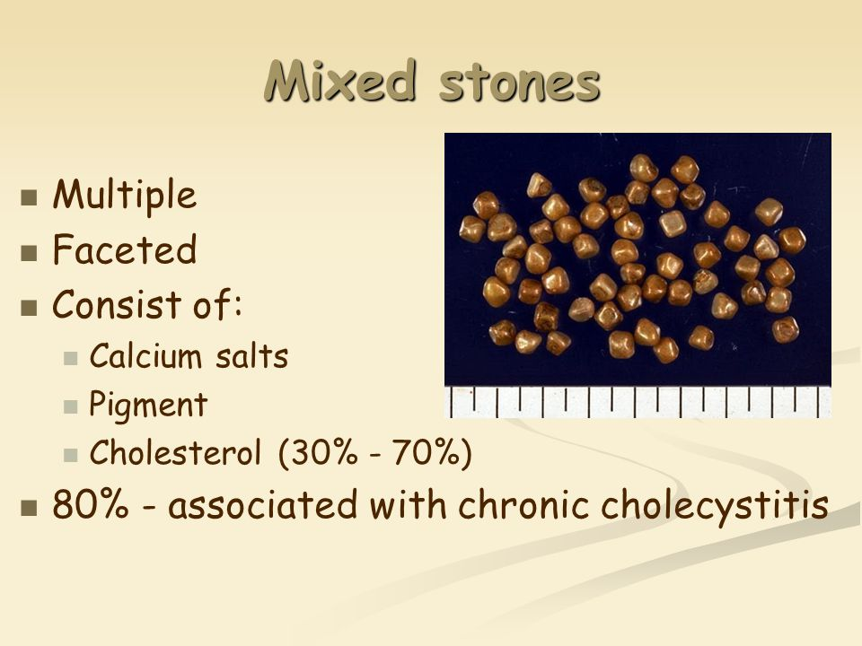 Mixed stones Multiple Faceted Consist of: Calcium salts Pigment Cholesterol (30% - 70%) 80% - associated with chronic cholecystitis