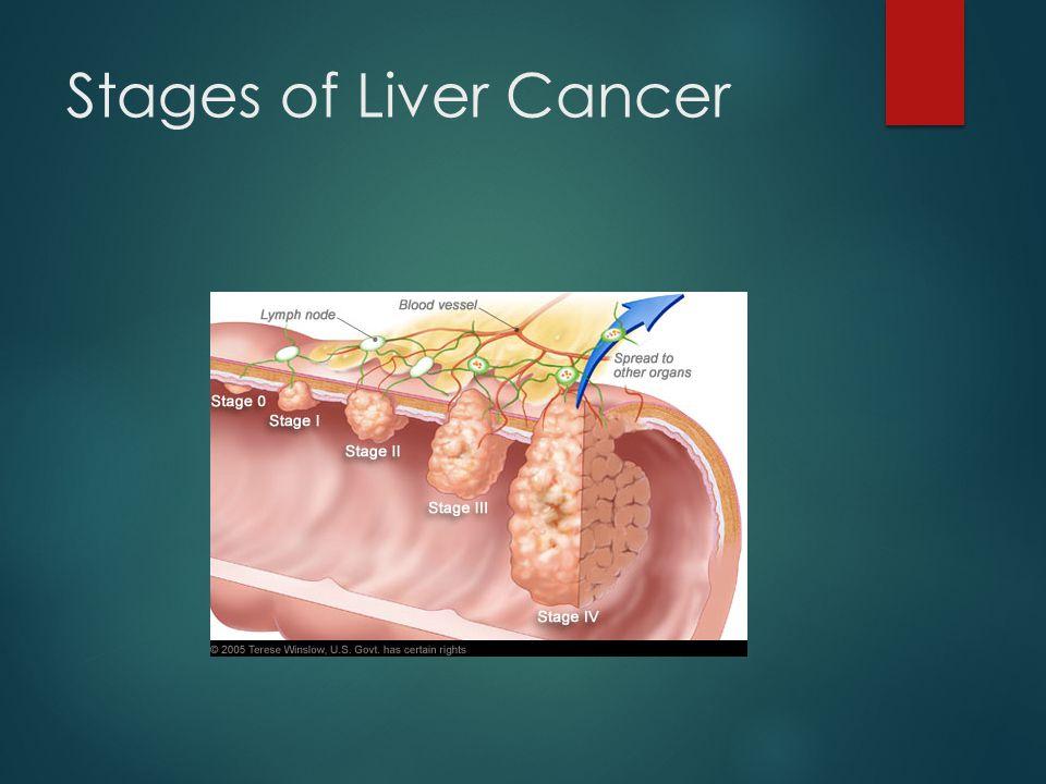 Final Stages Of Liver Cancer