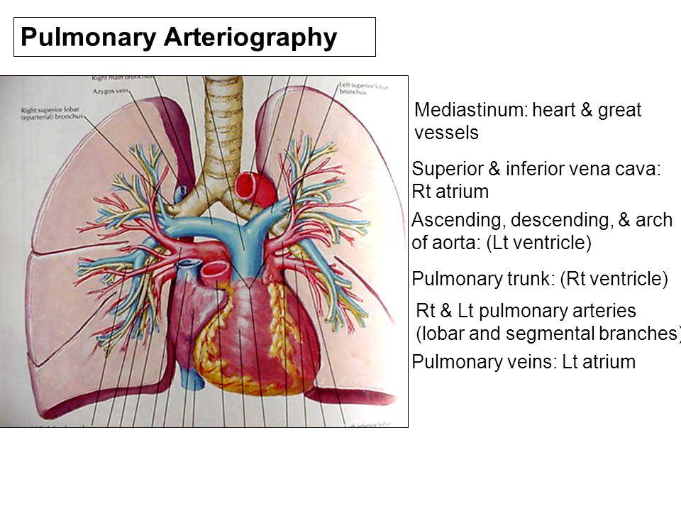 Pulmonary Arteriography Mediastinum: heart & great vessels Superior ...