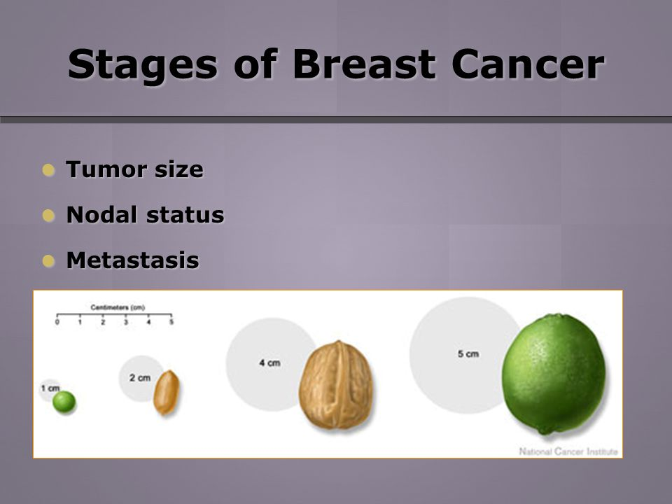 Stages of Breast Cancer Tumor size Tumor size Nodal status Nodal status Metastasis Metastasis