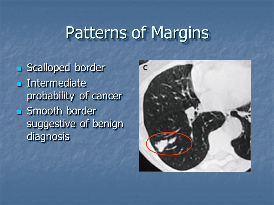 Patterns of Margins Scalloped border Scalloped border Intermediate probability of cancer Intermediate probability of cancer Smooth border suggestive of benign diagnosis Smooth border suggestive of benign diagnosis Scalloped border Scalloped border Intermediate probability of cancer Intermediate probability of cancer Smooth border suggestive of benign diagnosis Smooth border suggestive of benign diagnosis