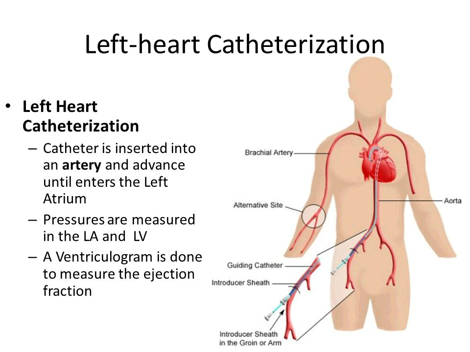 Diagnostic Tests For Cardiovascular System Diagnostic Tests