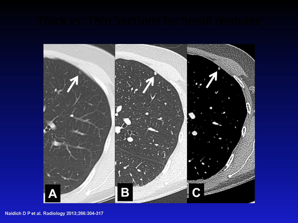Thick vs. Thin Sections for Small Nodules Naidich D P et al. Radiology 2013;266: