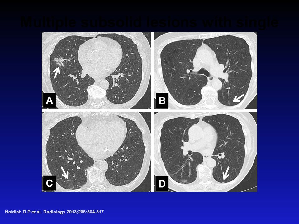 Multiple subsolid lesions with single dominant focus. Naidich D P et al. Radiology 2013;266: