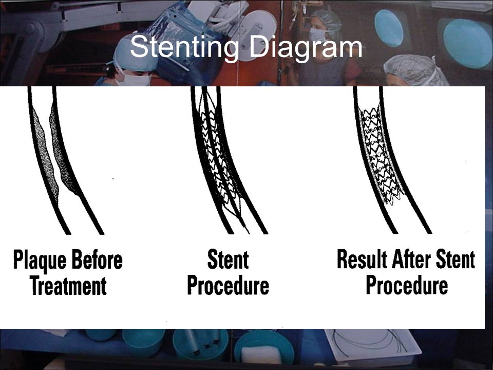 Stenting Diagram
