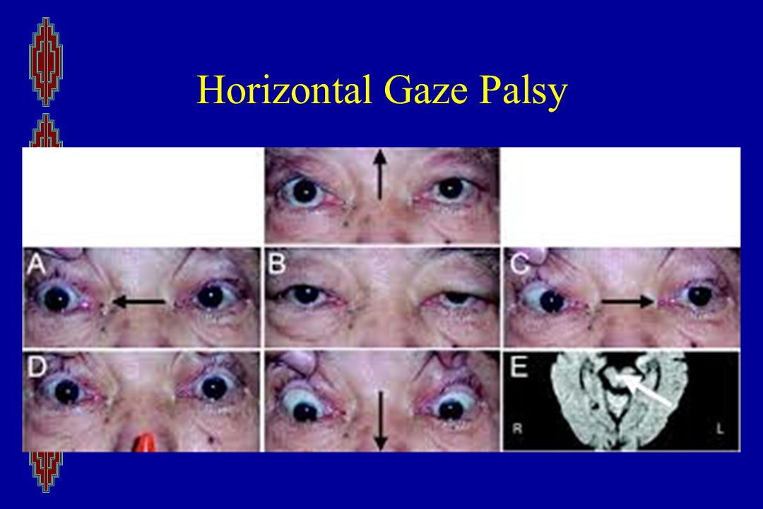 Horizontal Gaze Palsy