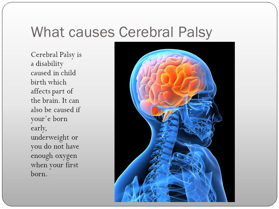 By Kayla Cerebral Palsy We Are All Human Beings Ppt Download