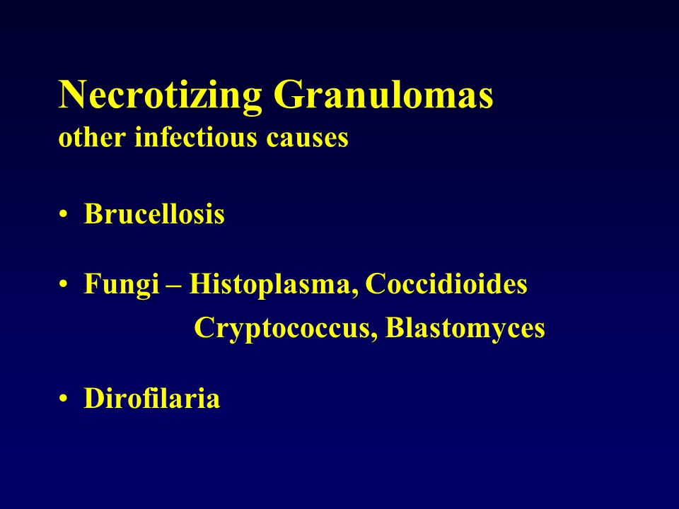 Necrotizing Granulomas other infectious causes Brucellosis Fungi – Histoplasma, Coccidioides Cryptococcus, Blastomyces Dirofilaria