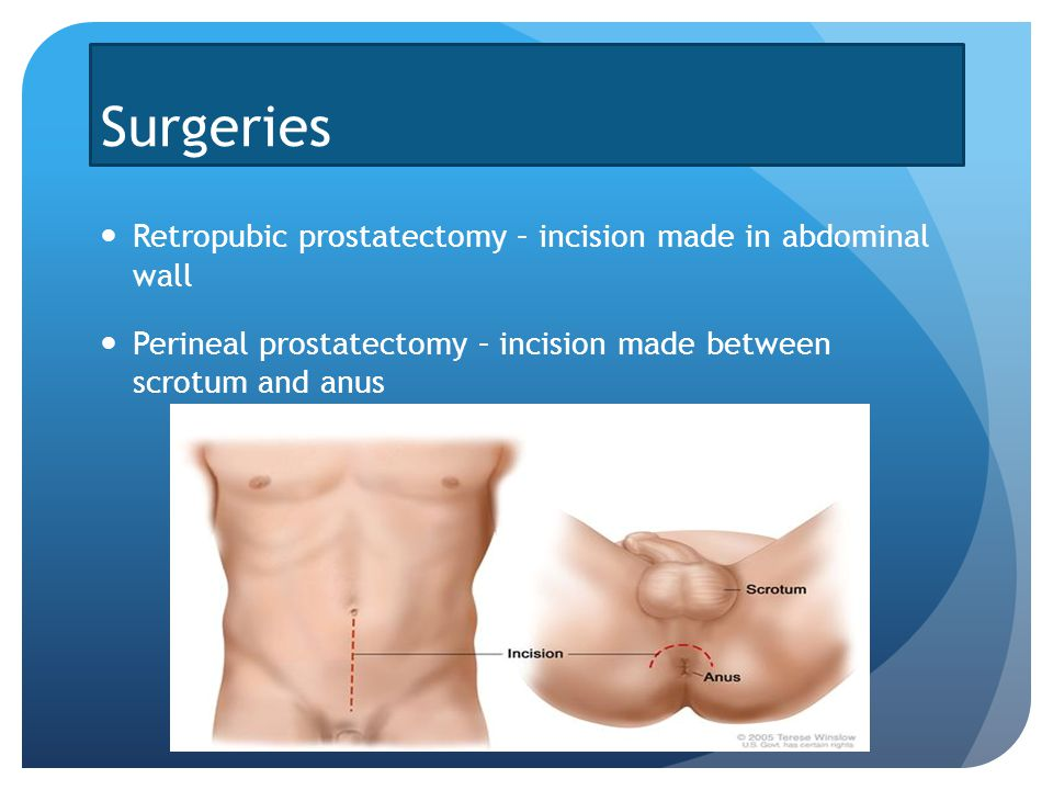 Prostate Cancer Treatments By Ishan Parikh Symptoms Be On The