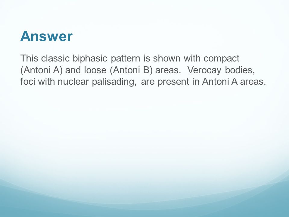 Answer This classic biphasic pattern is shown with compact (Antoni A) and loose (Antoni B) areas.