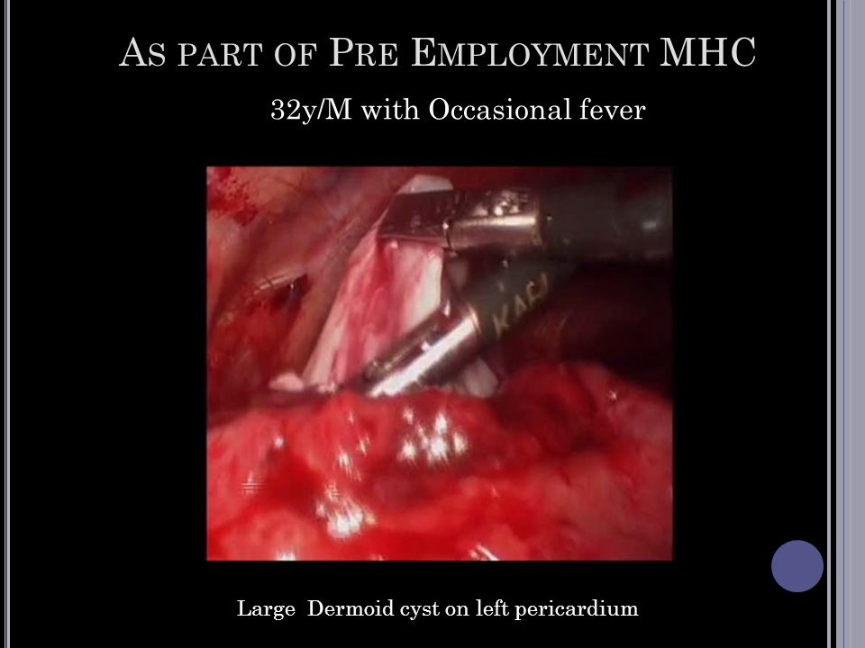A S PART OF P RE E MPLOYMENT MHC 32y/M with Occasional fever Large Dermoid cyst on left pericardium