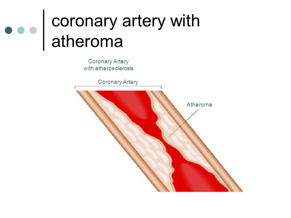 coronary artery with atheroma Atheroma Coronary Artery with atherosclerosis Coronary Artery