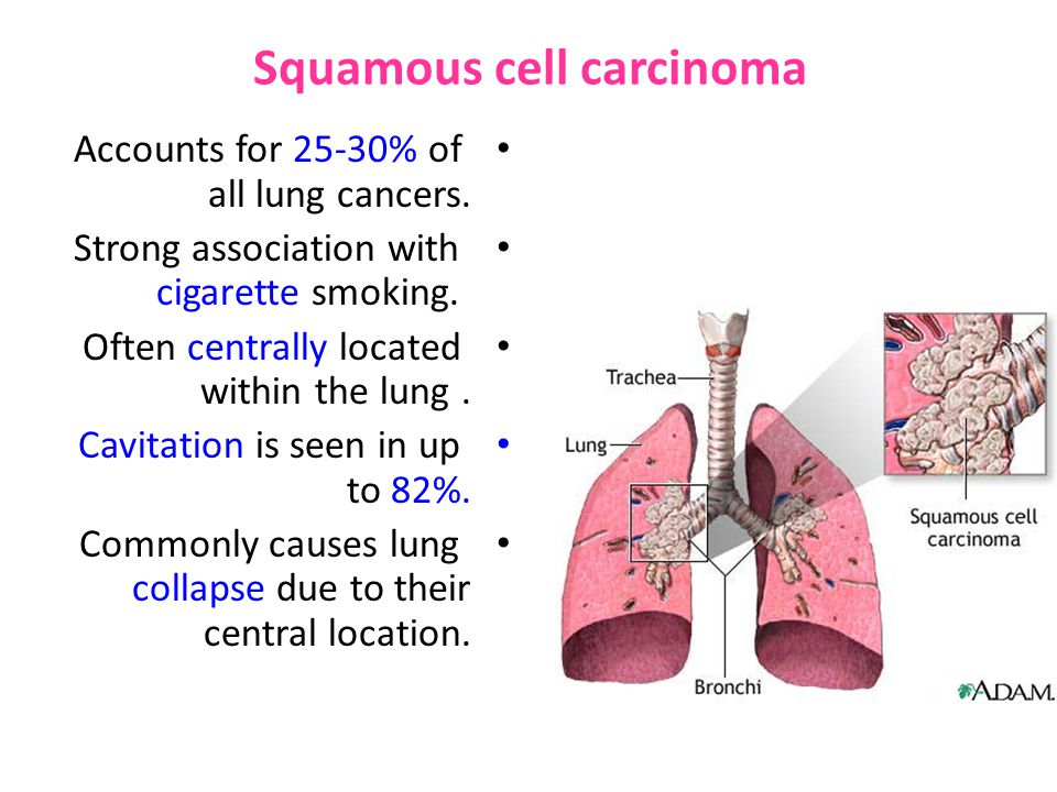 Squamous cell carcinoma Accounts for 25-30% of all lung cancers.
