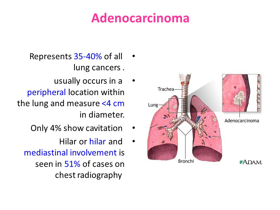 Adenocarcinoma Represents 35-40% of all lung cancers.