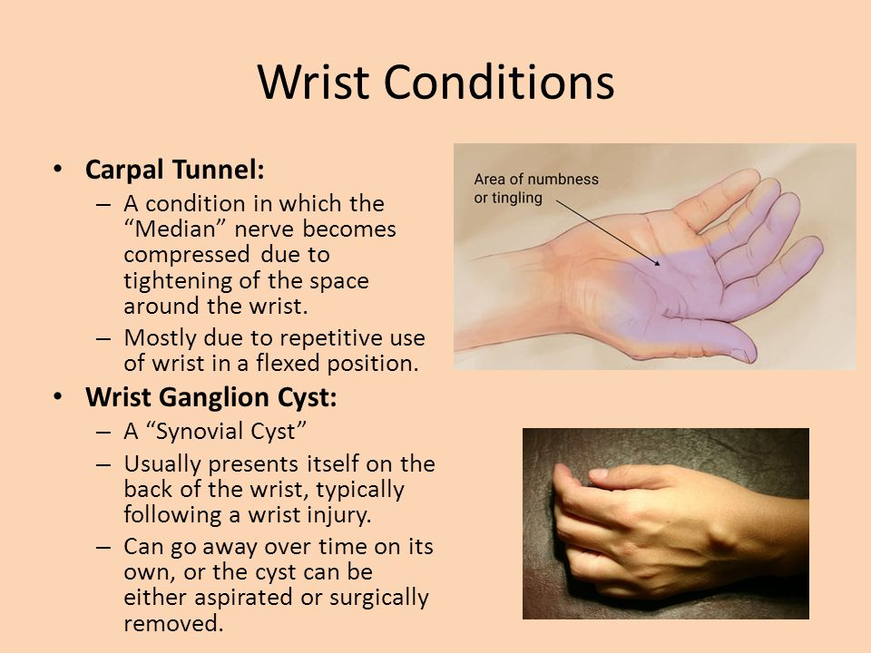 Injuries to Hand, Wrist and Forearm - Mr  Brewer  - ppt download