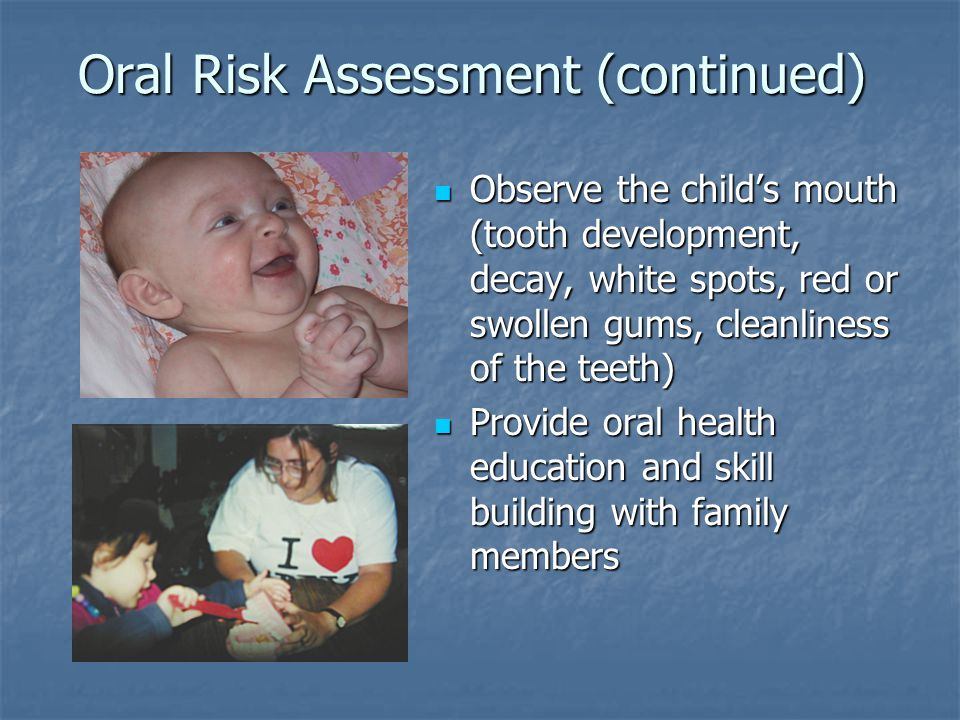 Oral Risk Assessment (continued) Observe the child's mouth (tooth development, decay, white spots, red or swollen gums, cleanliness of the teeth) Observe the child's mouth (tooth development, decay, white spots, red or swollen gums, cleanliness of the teeth) Provide oral health education and skill building with family members Provide oral health education and skill building with family members