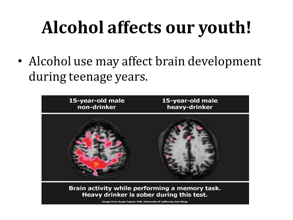 Alcohol affects our youth! Alcohol use may affect brain development during teenage years.
