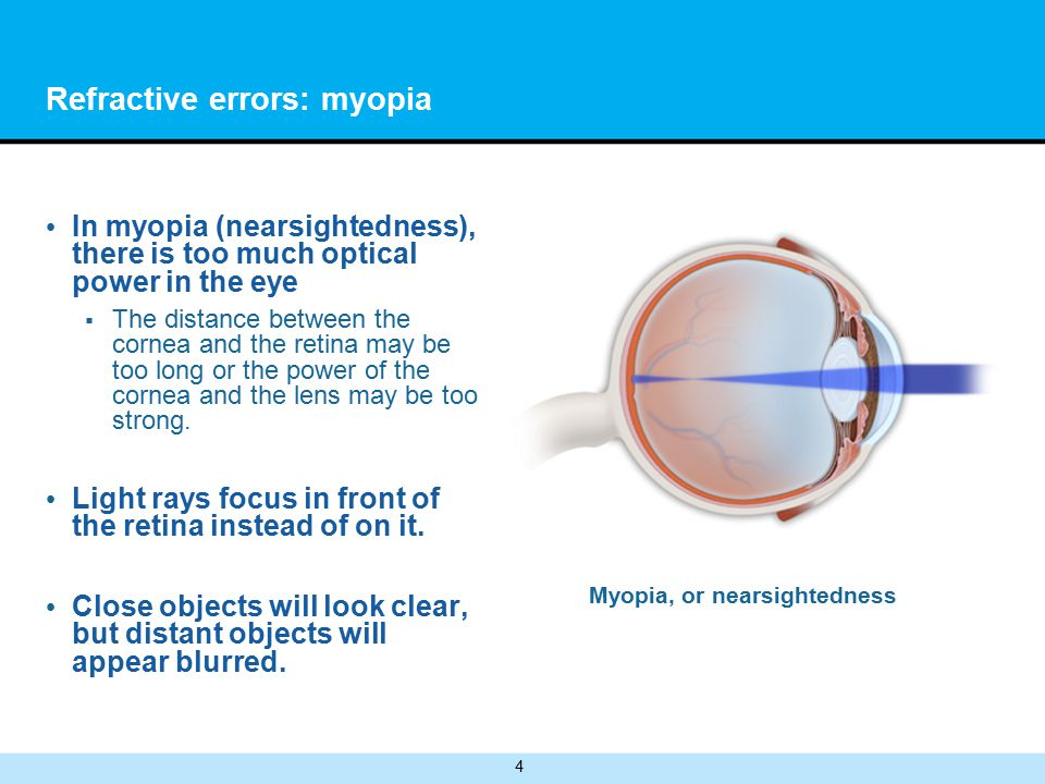 4 Refractive errors: myopia In myopia (nearsightedness), there is too much optical power in the eye  The distance between the cornea and the retina may be too long or the power of the cornea and the lens may be too strong.