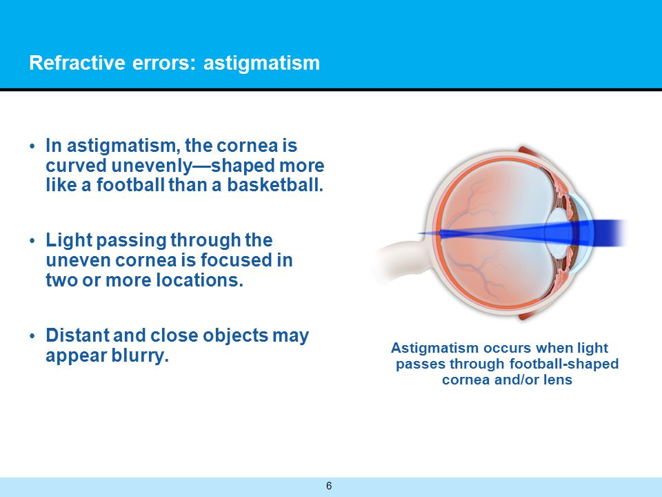 6 Refractive errors: astigmatism In astigmatism, the cornea is curved unevenly—shaped more like a football than a basketball.
