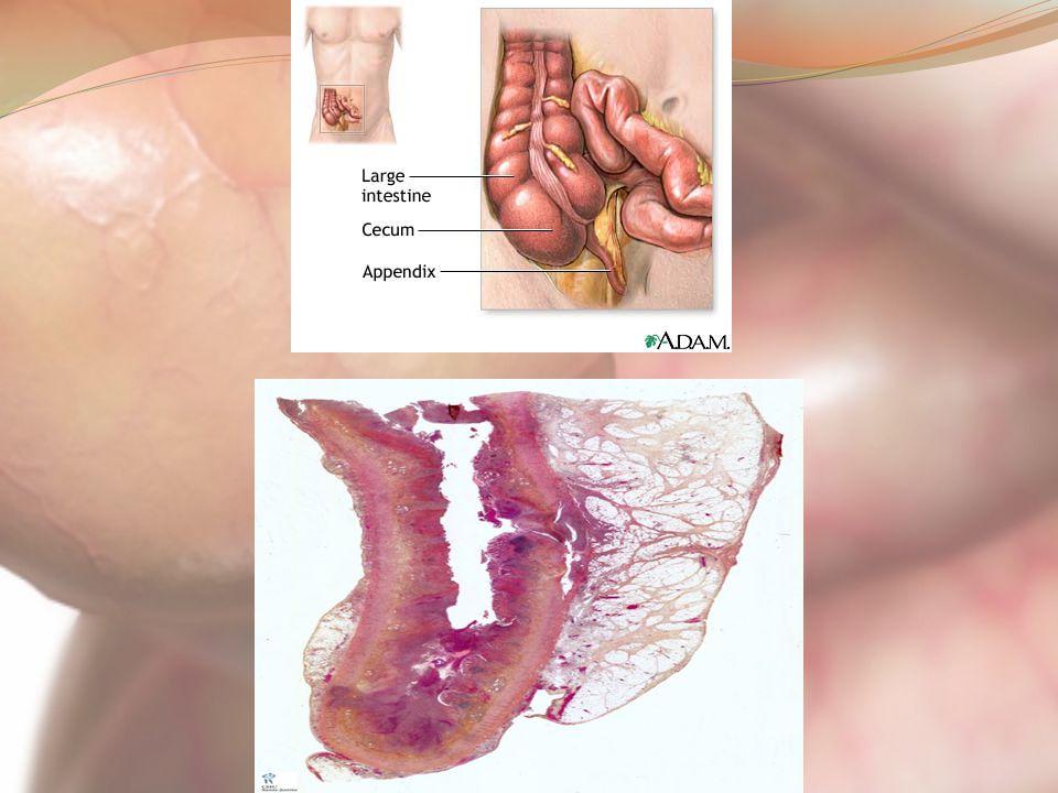 Presented By Sara Shokri Moghaddam Anatomy Function Of Appendix
