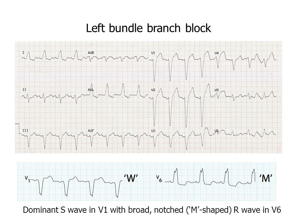 4 Left Bundle Branch Block Dominant S Wave In V1 With Broad Notched M Shaped R V6